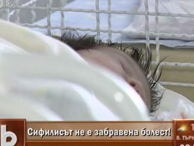 сифилис при бебета