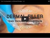 Попълване на линия на сълзите с хиалуронова киселина