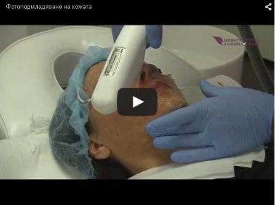Photorejuvenation of the skin