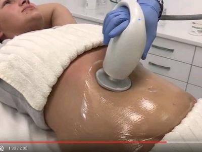 'Обикни тялото си' с Reverse и Accent prime - Първа процедура